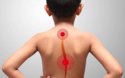 La scoliose idiopathique de l'adolescent et sa prise en charge ostéopathique